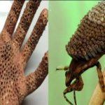 poisonous animals বিষাক্ত কীটপতঙ্গ