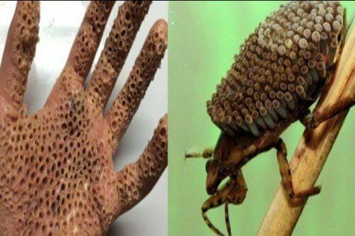 Read more about the article প্রানীজগতের ১০ প্রজাতির বিষাক্ত কীটপতঙ্গ